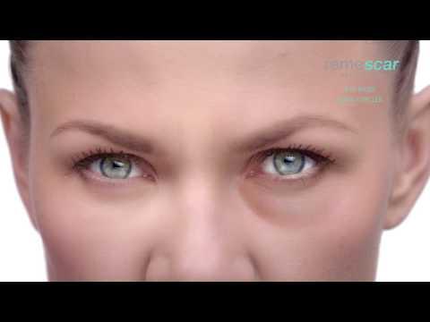 remescar-eye-bags-&-dark-circles-tv-spot-mandarin---singapore