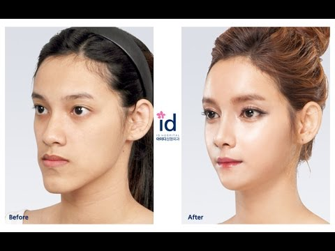 [ID Hospital Review]  Let Me In 4, Korea Plastic Surgery, ศัลยกรรมเกาหลี, ศัลยกรรมเกาหลีของคนไทย