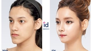 id hospital : Let Me In 4 in Thailand, Korea Plastic Surgery, ศัลยกรรมเกาหลี, ศัลยกรรมเกาหลีของคนไทย
