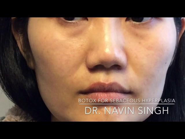 (Wow!) Botox for Sebaceous Hyperplasia