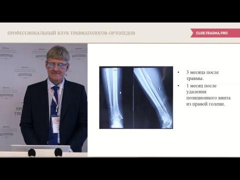 Повреждения и заболевания голеностопного сустава