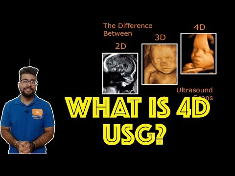The Main Difference Between 2D, 3D, and 4D Ultrasounds