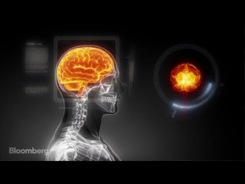 Building a Working Human Brain on a Supercomputer