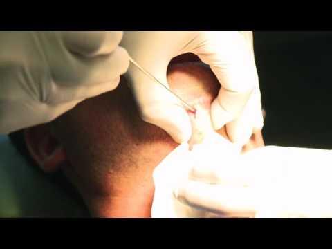 Neck Liposuction Dr Morrissette