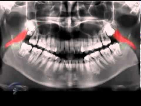 Anatomia Radiografia Panoramica dental advance clinica estetica ...