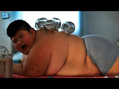 5 Shocking Obese Kids || Morbidly Obese kids - Top List