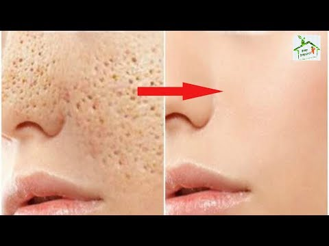 permanently-say-goodbye-to-open-skin-pores-with-these-remedies