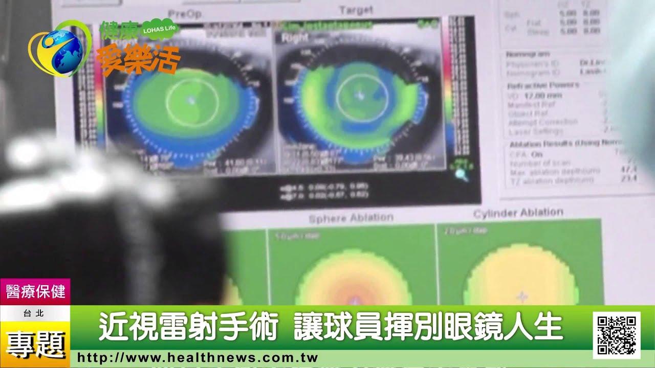 近視雷射手術 讓球員揮別眼鏡人生 - YouTube