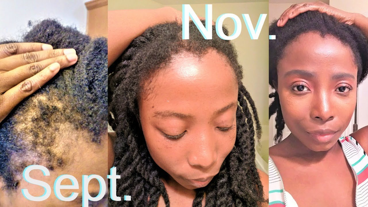 Grow Your Edges Super Fast Bald Thinning Edges Regimen
