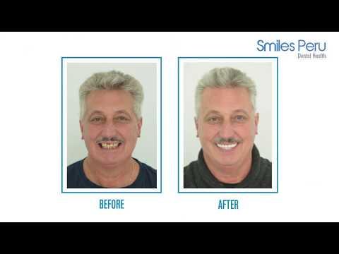 prótesis-fija-sobre-implantes-dentales-smiles-peru