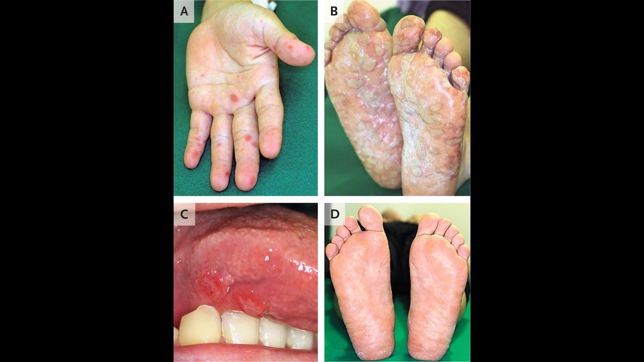 Hand Mund Fuß Windelbereich