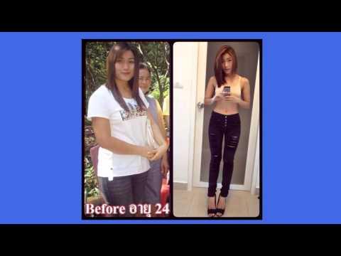 สาวอ้วน 70 ลดเหลือ 47กก  ไม่ใช้ยาลดความอ้วน