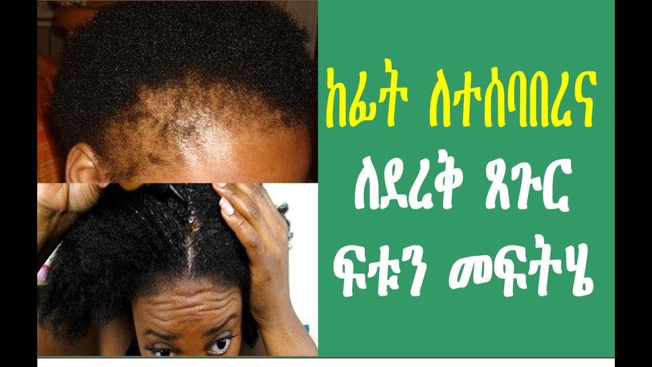 Home remedies for  hair loss in Amharic