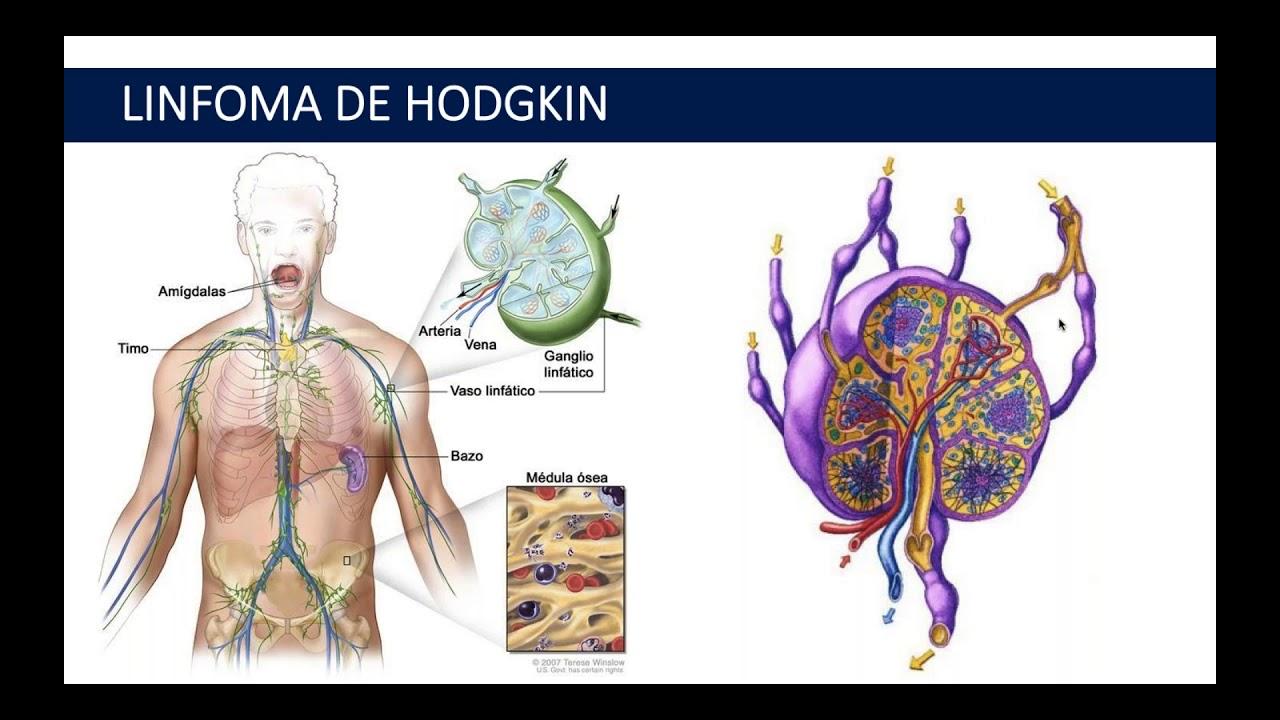 cancer de hodgkin