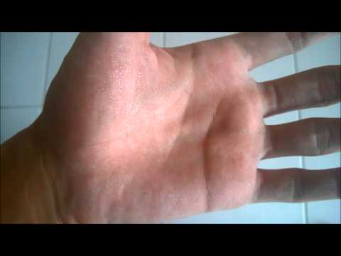 Do You Have Hyperhidrosis?