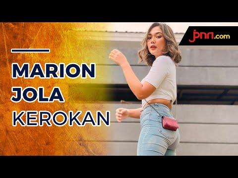 Marion Jola Pamer Punggung Kerokan, Netizen Gagal Fokus