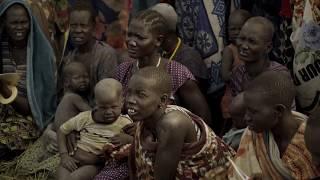 La hambruna en Sudán del Sur: Un brote de cólera