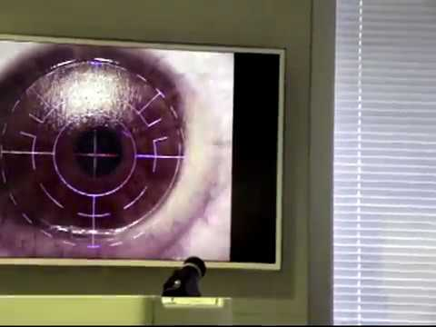 Проведение лазерной коррекции «Фемто-ЛАСИК» в клинике «Эксимер» г. Ростов-на-Дону