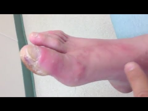 Diabetic Toe Infection