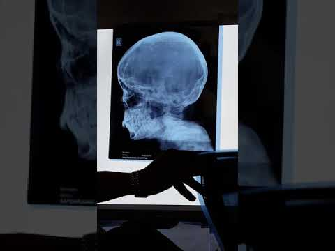 X-Rays in ENT (MBBS Junior Finals)