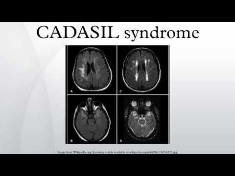 CADASIL syndrome