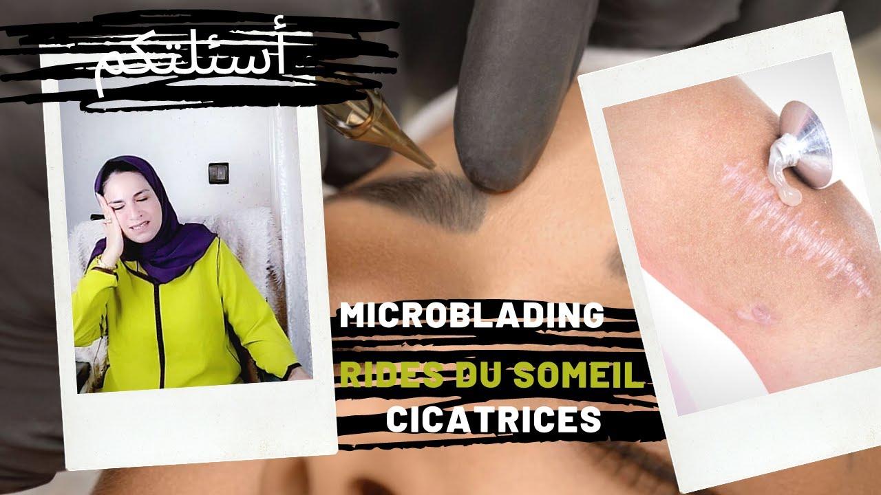 مايكروبليدينج ندبات الوجه تحليل الشعر للمعادن تجاعيد النوم | رد على اسئلتكم