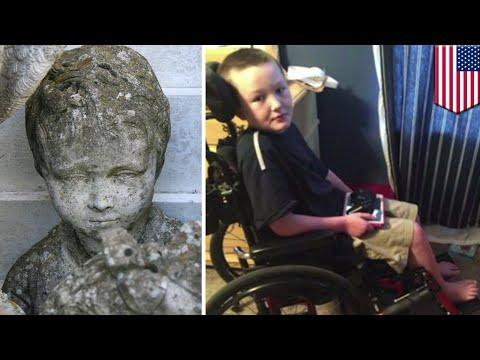 Stiff skin syndrome: Rare condition is turning boy to stone - TomoNews