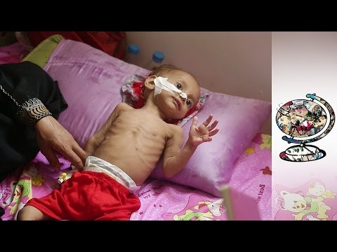 Yemen's Children are Starving