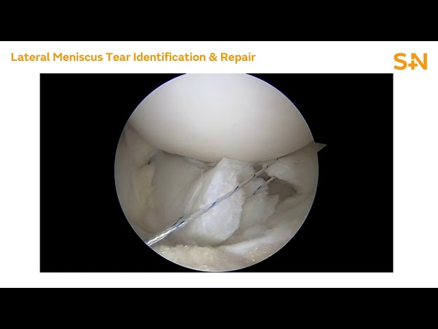 Chronic Complex Lateral Meniscus Repair with NOVOSTITCH PRO - Dr. Seth Sherman (20752 V1)
