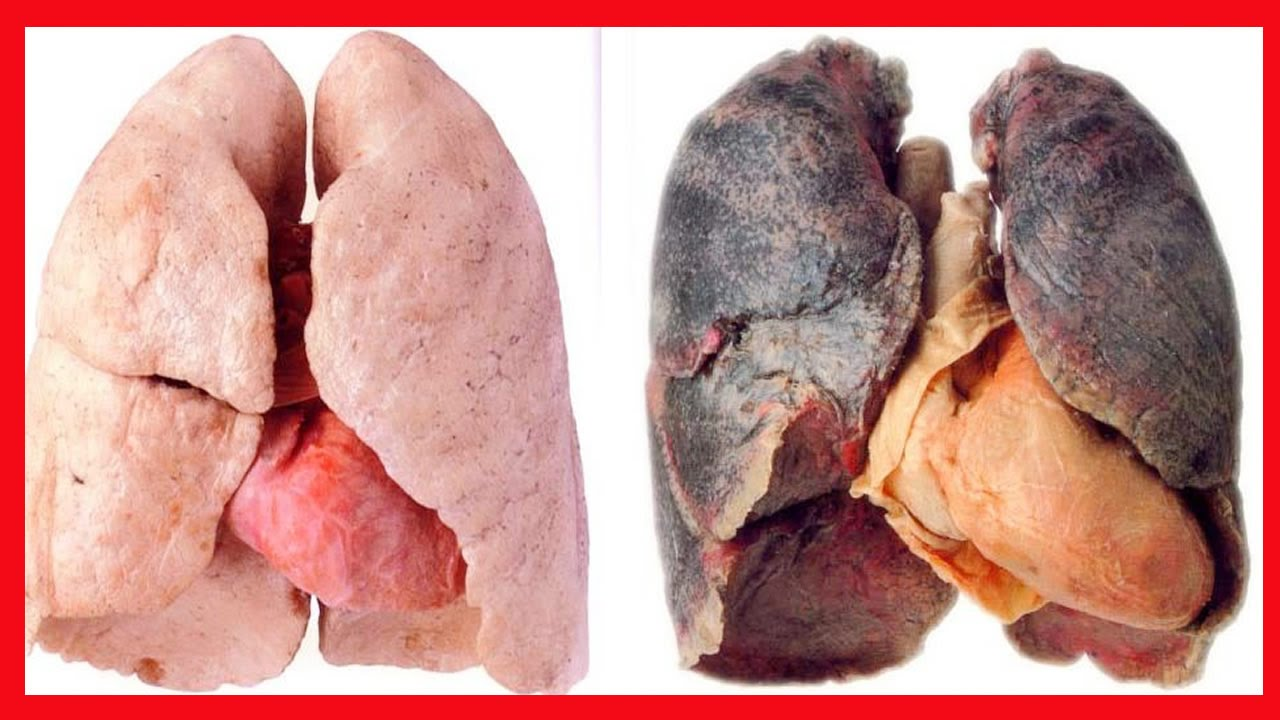 Deixar de fumar na gravidez