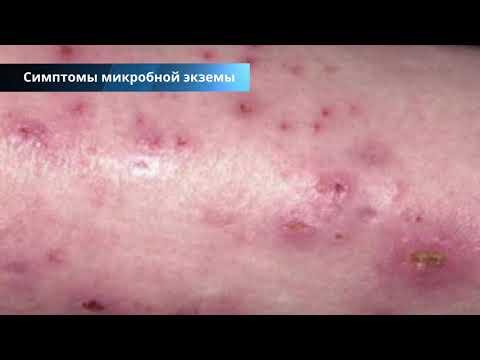 Микробная экзема на руках и ногах: причины, симптомы, методики лечения и профилактика