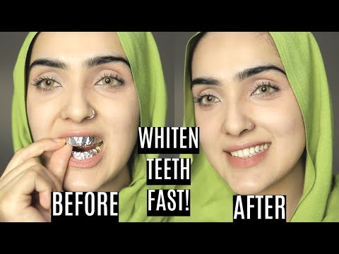How To Whiten Your Yellow Teeth Naturally At Home | DIY TEETH WHITENING STRIPS ~ Immy