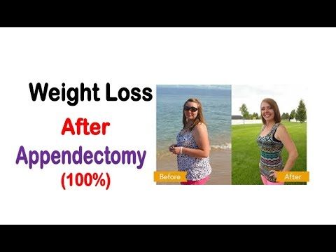 Tips To Lose Weight On Your Stomach