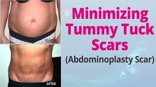 Minimizing Tummy Tuck Scars (Abdominoplasty Scar) - Edelstein Cosmetic - Toronto Thumbnail