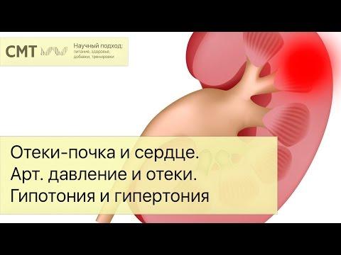 Отеки - почка и сердце. Артериальное давление и отеки. Гипотония и гипертония