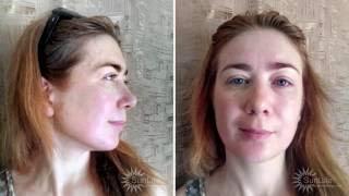 видео Буккальный массаж лица: отзывы, техника