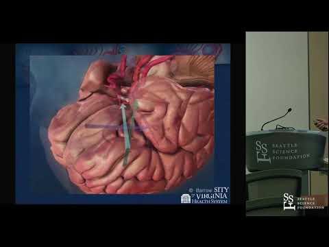 Orbitozygomatic Craniotomy and Variations - Yashar Kalani, M D , Ph D