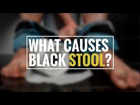 Black Stool: Causes, Symptoms, Diagnosis & Treatment | Health Solution