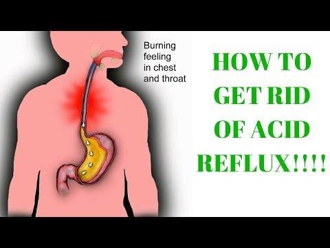 how to get rid of acid reflux burning in throat   acid reflux treatment –  instant relief