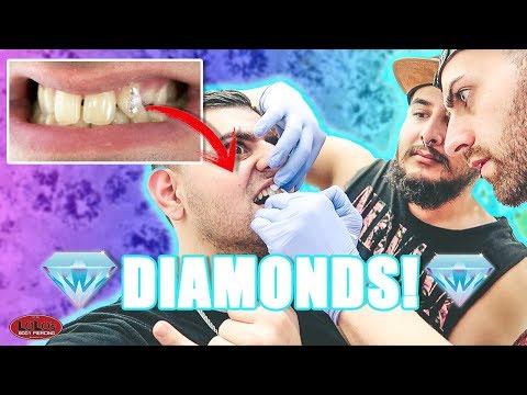 1ST EVER DIAMOND TOOTH PIERCINGS!?