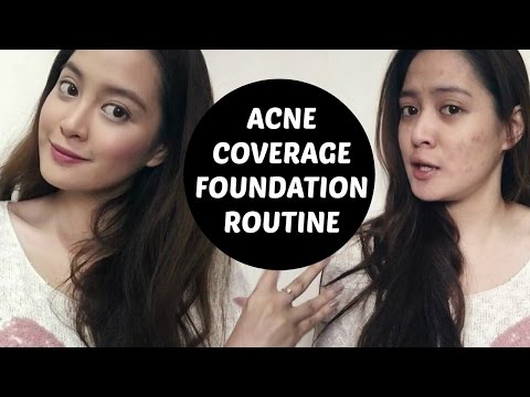 hqdefault - Best Concealer For Acne In The Philippines