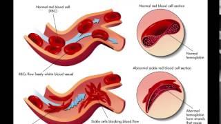 Anemia, Penyakit yang Ditimbulkan karena Kurangnya Jumlah Sel Darah Merah, Kenali Gejalanya.