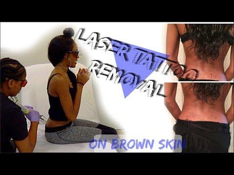 LASER TATTOO REMOVAL ON DARK SKIN | ? Worst Tattoo Ever!