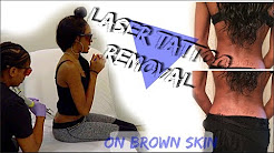 LASER TATTOO REMOVAL ON DARK SKIN | ? Worst Tattoo Ever!