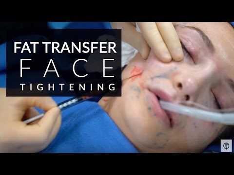 Fat transfer for face | Facial contour with fat grafting | Beverly Hills