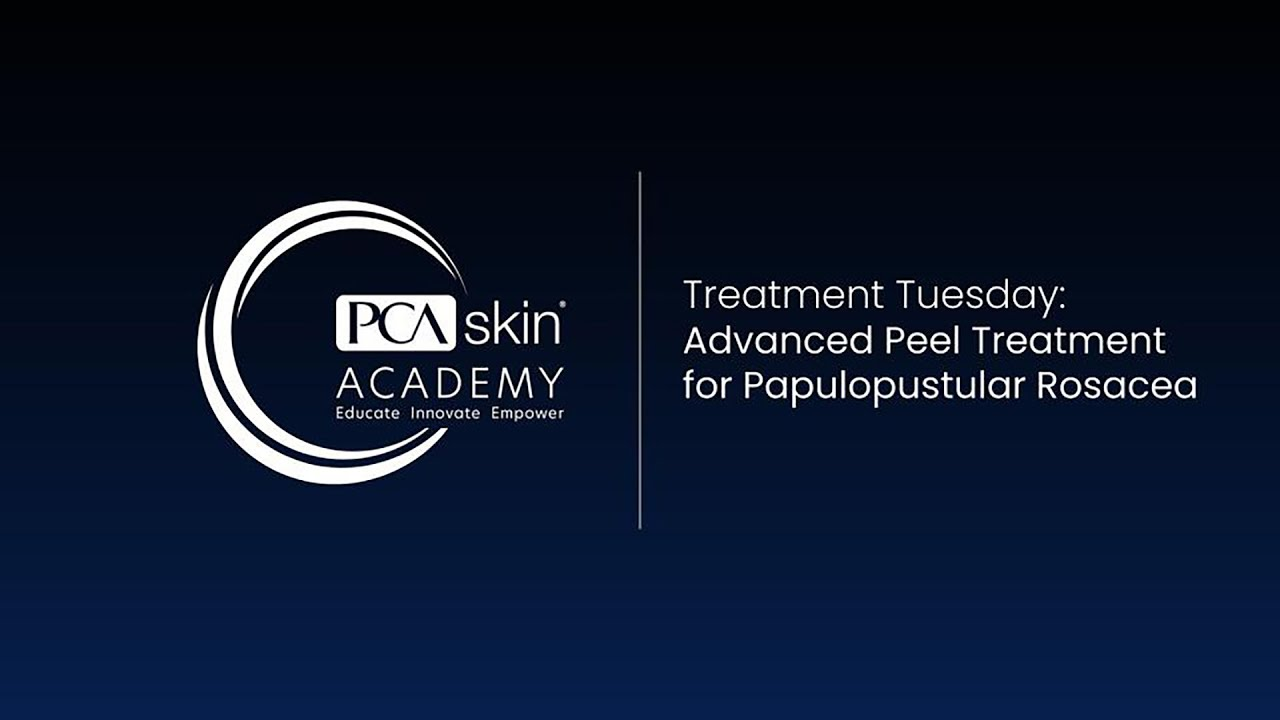 Click to open this video in a pop-up modal: Treatment Tuesday: Advanced Papulopustular Rosacea Treatment