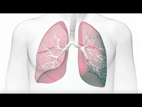 Idiopathic Pulmonary Fibrosis (IPF): Risk Factors and Diagnosis