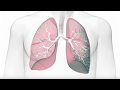 Idiopathic Pulmonary Fibrosis (IPF): Risk Factors and Diagnosis