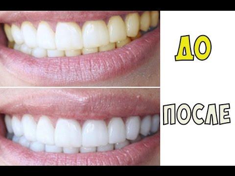Отбеливание зубов стоматология хабаровск