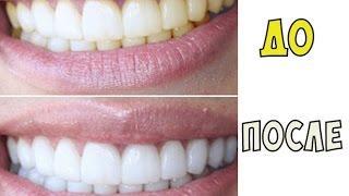 КАК ОТБЕЛИТЬ ЗУБЫ ЗА 1 МЕСЯЦ [ЛайфХак](Как отбелить зубы в домашних условиях своими средствами практически без затрат и в короткий срок? Об этом..., 2015-08-24T14:49:02.000Z)